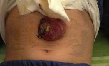 A Cutaneous Lymphoma Mimicking Superficial Skin Abscess In