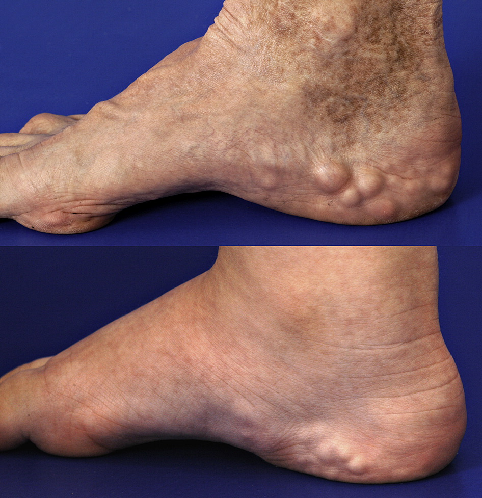 Piezogenic Papules in Ehlers-Danlos Syndrome - The Journal of Pediatrics