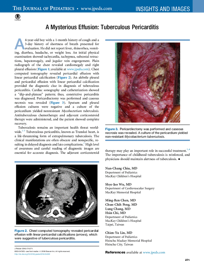 A Mysterious Effusion: Tuberculous Pericarditis - The ...